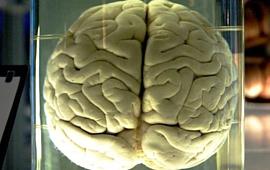 Ученые создали импланты мозга, которые на 30% улучшают память
